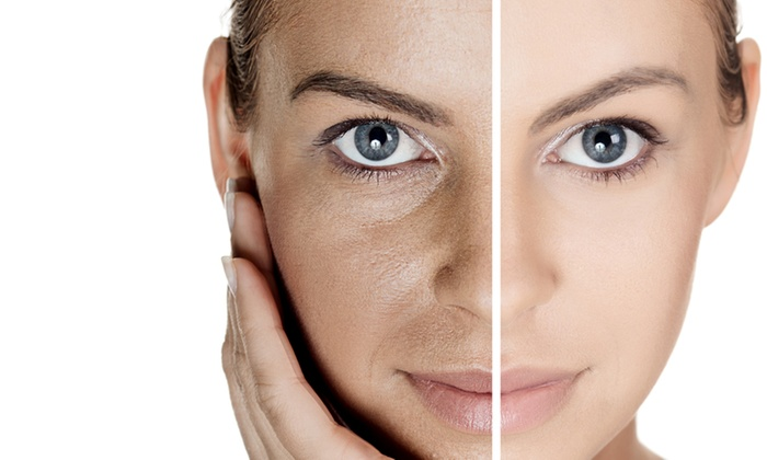Beauty 911 Skin Lounge - Manchester: Up to 65% Off non surgical facelift at Beauty 911 Skin Lounge