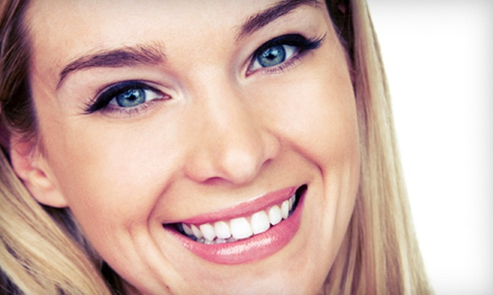 Bare Smooth - Southpoint: $149 for Five Laser Teeth-Whitening Treatments at Bare Smooth ($349 Value)