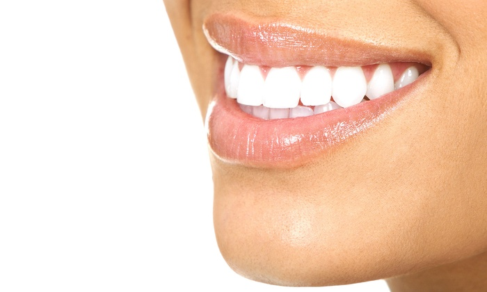 Perle Blanche Smile Studios - Maple Ridge: $79 for an In-Office Laser Teeth-Whitening Treatment at Perle Blanch Smile Studios ($200 Value)