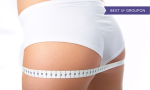 McGrath Cosmetic: Three, Six, or Nine LipoLaser Treatments at McGrath Cosmetic (Up to 79% Off)
