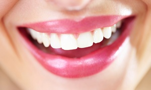 Bella Divas Day Spa: Self-Administered Teeth Whitening Kit For R790 at Bella Divas Day Spa (66% Off)