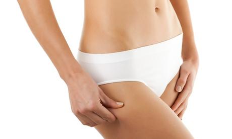 5 o 10 sesiones de láser lipolítico, masaje con crema reductora y presoterapia desde 54,90 € en Sthetic Oferta en Groupon