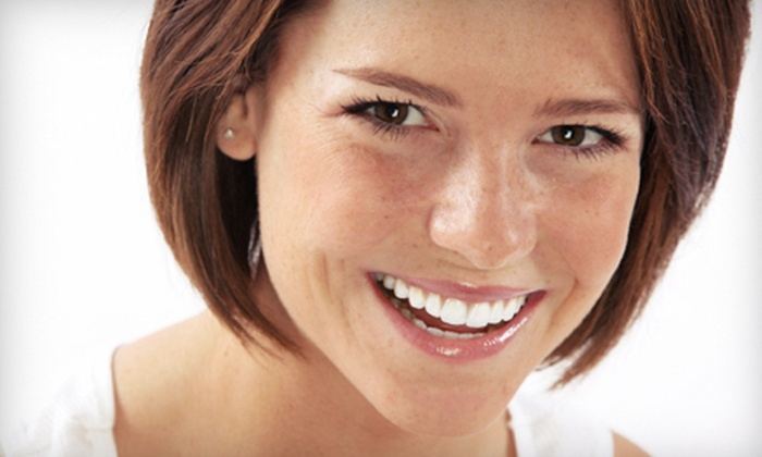 Bella Glow - Southwest Ada County Alliance: Two or Four Teeth-Whitening Sessions at Bella Glow (Up to 67% Off)