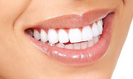 Blanchiment dentaire sans peroxyde de 20 ou 40 min dès 19,90 € avec Frenchy Smile