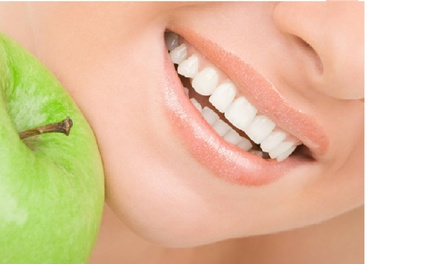 Up to 84% Off Dental Exam X-Rays, Cleaning, and Whitening at Fuller Dentistry