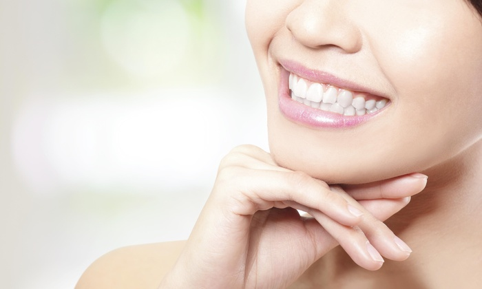 Xtreme Whitening LLC. - Victoria Place: 47% Off Take Home Teeth Whitening Kit at Xtreme Whitening LLC.