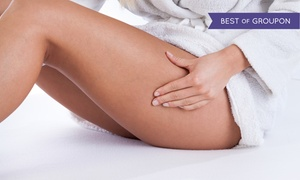 Body Factory Skin Care: One, Three, or Six Spider Vein, Age Spot, or Sun Spot Treatments at Body Factory Skin Care (Up to 86% Off)