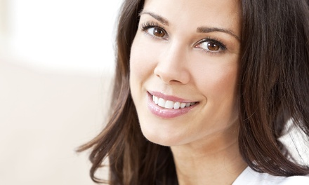 $59 for an Invisalign Exam, Teeth Whitening, and $1,000 Credit Toward Invisalign from George Namay DDS ($512 Value)