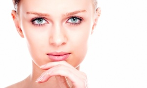 Desire Perfection Med Spa & Laser Center: Peel with Optional Facial or Microdermabrasion at Desire Perfection Med Spa & Laser Center (Up to 59% Off)