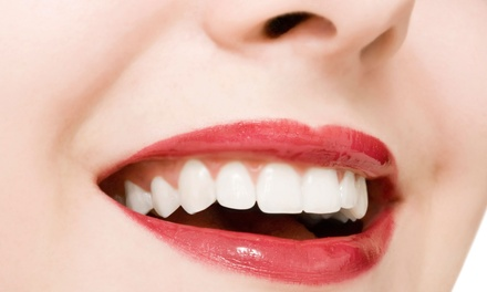 One-Year Dental Plan or $105 for $300 Worth of Dental Procedures at Eureka Dental Group