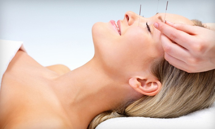Dustin Siena, L.AC. - Camarillo: Acupuncture Packages from Dustin Siena, L.AC. (Up to 85% Off). Three Options Available.