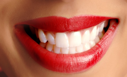 Teeth-Whitening Treatments at Do Beaming White (Up to 65% Off). Three Options Available.