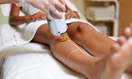 Six Laser Hair-Removal Sessions on a Small, Medium, or Large Area at Laser Zensation (Up to 52% Off) 8880adbc-128c-4f69-9d2a-d7e596f679a7