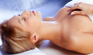 Acu-Therapy Associates: One or Three Acupuncture Sessions at Acu-Therapy Associates (Up to 77% Off)