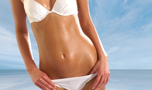 Esencia Salon & Spa: 1, 10, or 20 Anti-Cellulite Vacuum Therapy Treatments at Esencia Salon & Spa (Up to 66% Off)