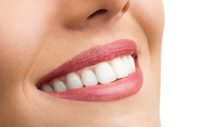 Dott. Nespola Studio Dentistico: Pulizia, bite antibruxismo o buono sconto di 1300 € per allineatore dentale invisibile - Dott. Nespola Studio Dentistico