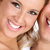 Up to 55% Off At-Home Teeth Whitening Set