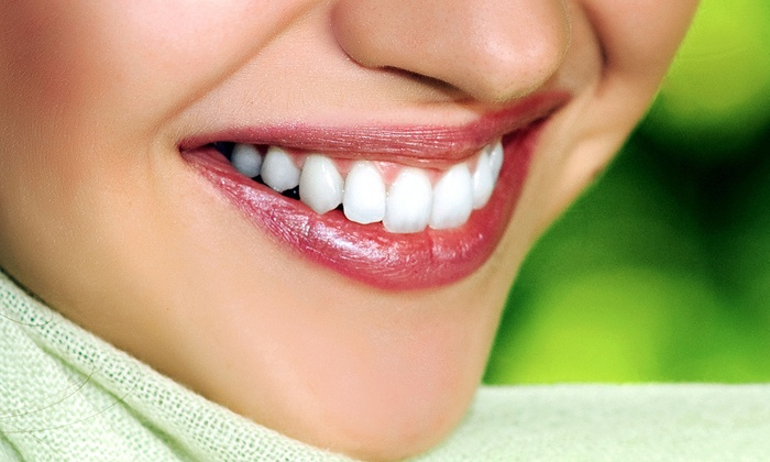 Saggio Spa - Penfield: $49 for Two Solar White Teeth-Whitening Treatments at Saggio Spa ($190 Value)