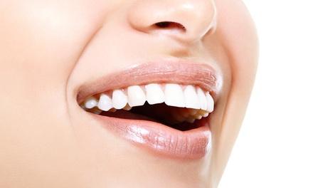 1 o 2 sesiones de blanqueamiento dental led y limpieza bucal desde 44,90 € en Clínica dental oraldentia
