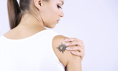 image for One, Three or Six Sessions of Laser Tattoo Removal at Dead 2 Rights Tattoo Studio