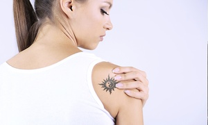 Godfathers Barbers: Laser Tattoo Removal: Five Sessions from £59 at Godfathers
