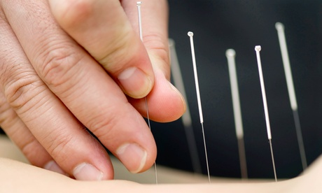 One or Three 60-Minute Acupuncture Treatments at Main Massage Therapy and Acupun...