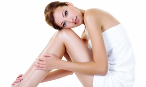 Calista Skin & Laser Center: Two, Three, or Four Laser Spider-Vein Treatments at Calista Skin & Laser Center (Up to 78% Off)