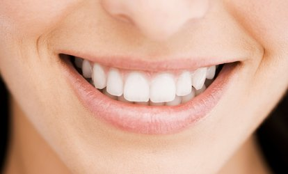 image for $36 for Dental Package from Dr. Plishtin and Haas ($235 value)