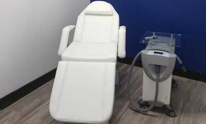 US Cryotherapy - Pleasanton - From $35 - Pleasanton, CA   Groupon