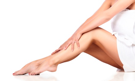 One or Two Sclerotherapy Spider-Vein Treatments at Vena – The Varicose Vein Institute (Up to 80% Off)
