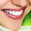 88% Off Dental Package