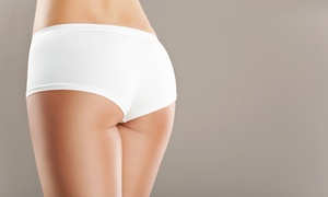 77% Off Skin-Tightening Treatment at Look Great MD at Look Great MD, plus 6.0% Cash Back from Ebates.