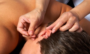 BodyMx: Three or Six Auricular Ear-Acupuncture Treatments at BodyMx (Up to 63% Off)
