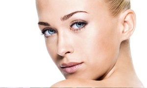 Marie Monet European Skin Care and Spa: One or Three Nonsurgical Face-Lifts or Face-Lift Package at Marie Monet European Skin Care & Spa (Up to 68% Off)