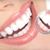 92% Off Dental Exam and Cleaning
