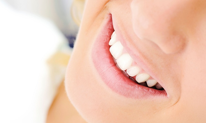 Beauty Bar Laser Clinic - Multiple Locations: Peroxide- or Botanical-Gel Teeth-Whitening Treatment at Beauty Bar Laser Clinic (Up to 78% Off)