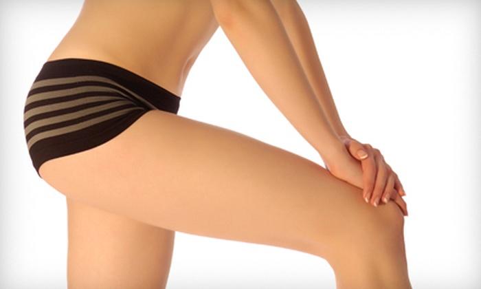 SkinFixSpa - Indianapolis: Six or Eight VelaShape Body-Contouring Treatments at SkinFixSpa (86% Off)