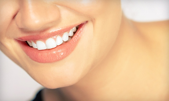 Zaibak Center for Dentistry - Tinley Park: In-Office Custom Teeth Whitening System or Four Porcelain Veneers at Zaibak Center for Dentistry in Tinley Park (Up to 64% Off)