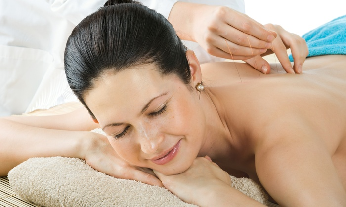 $31 for $140 Worth of Acupuncture — Morning Sun Acupuncture & Chinese Medicine