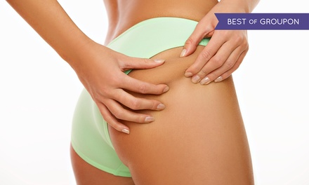 Laser Lipolysis: Three or Six Sessions from £49 at Aesthetics of London (London)