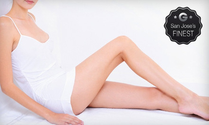 New Image Medical Spa - Fremont: Two or Four Sclerotherapy Spider-Vein Treatments at New Image Medical Spa (Up to 52% Off)