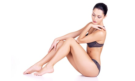 Laser Hair-Removal Treatments with Option Touch-Ups (Up to 84% Off). Five Options Available.