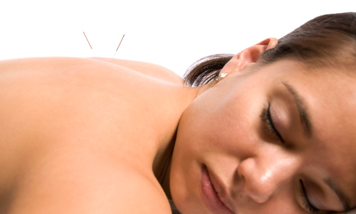 Fishkin Center for Back and Body Wellness - Beltsville: Two or Four Dry-Needling Sessions with Exam Package at Fishkin Center for Back and Body Wellness (Up to 87% Off)