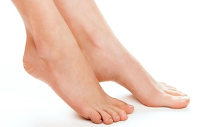 Sioux Falls Foot Specialists: Laser Toenail-Fungus Removal for One or Both Feet at Sioux Falls Foot Specialists (Up to 83%Off)