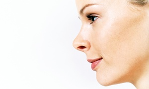 Lily Aesthetics: Dermal Rolling Treatments or Aesthetic Services at Lily Aesthetics (Up to 57% Off). Three Options Available.