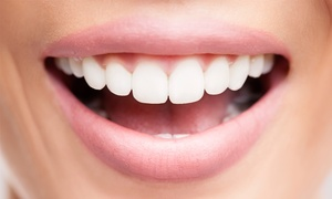 Cleggs Lane Dental Practice: Dental Implant With Porcelain Crown for £995 at Cleggs Lane Dental Practice
