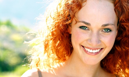 $159 for an In-Office Teeth-Whitening Treatment from Kianoosh Behshid DDS, PLLC ($695 Value)