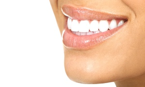 The Downtown Smile Center: Dental Cleaning, X-rays, and Exam with Optional Teeth Whitening at The Downtown Smile Center (Up to 80% Off)