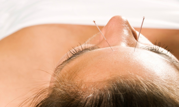 H&J Healing Clinic - Paradise Valley: One, Two, or Three Acupuncture Sessions with an Initial Consultation at H&J Healing Clinic (Up to 83% Off)