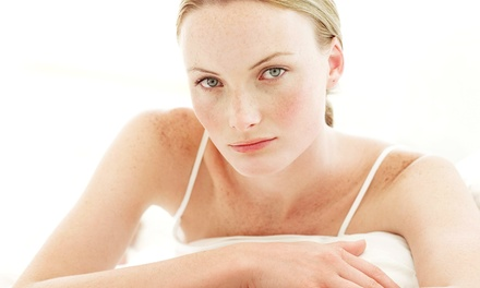 Dysport or Xeomin Treatment at Beverly Hills Rejuvenation Center (Up to 56% Off)
